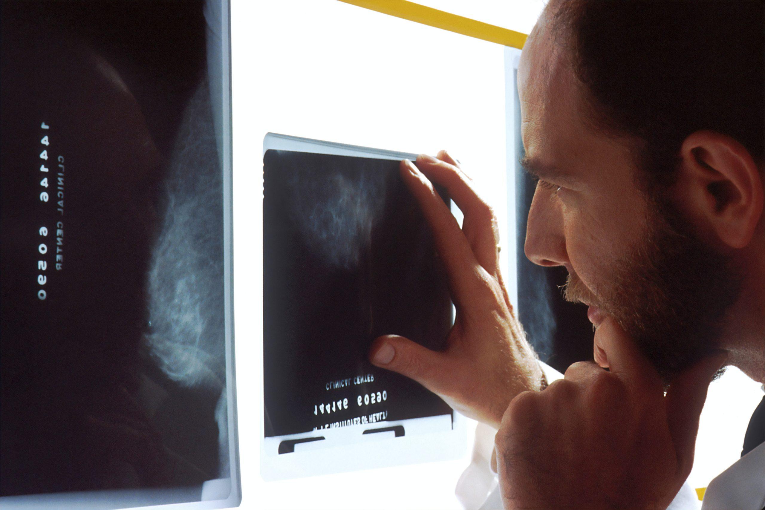 癌を患うと違う癌のリスクが上がるか?